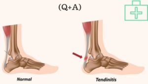 Achilles Tendon Injury, causes symptoms and treatments