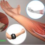 Tennis elbow injury, causes, symptoms and treatment